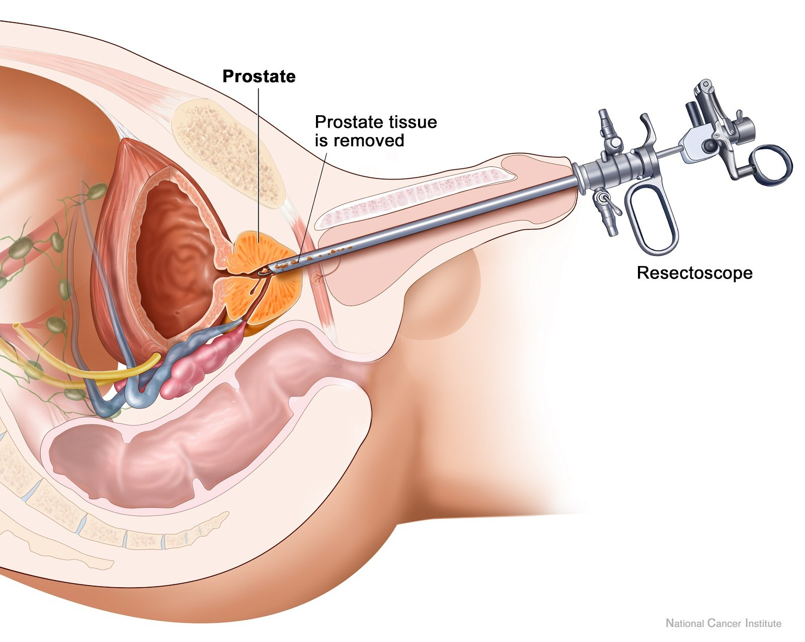 Transurethral resection of the prostate in saline (TURis)
