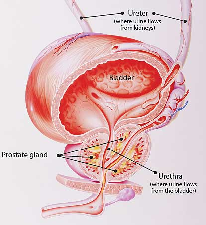 Prostatic Diseases